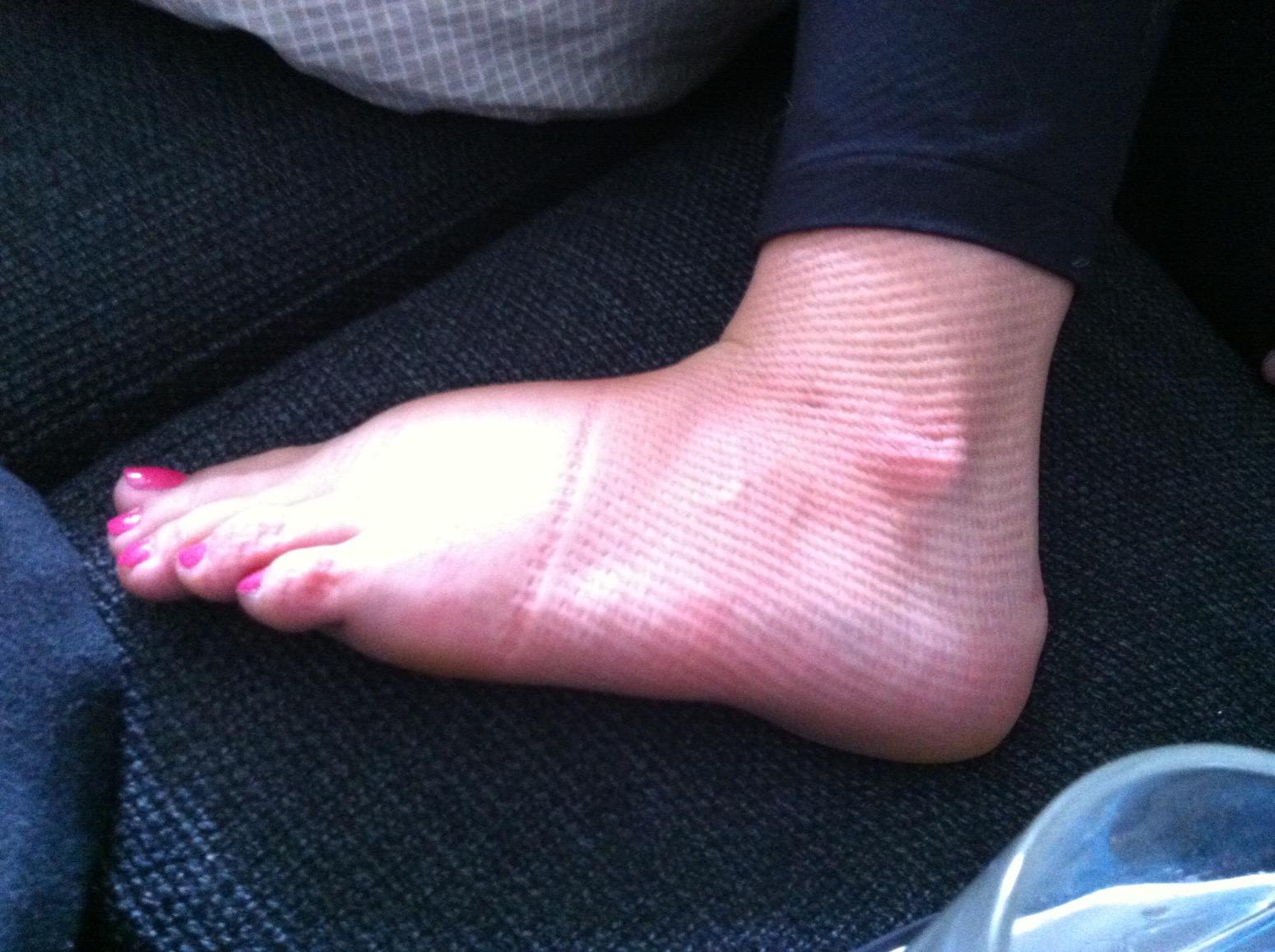 væske i ben og fødder